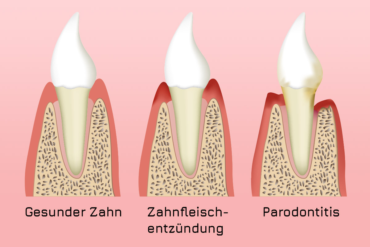 Parodontitis-Zeichnung